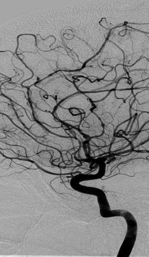 angiografia cerebral