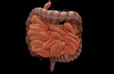 Diverticulosis and diverticulitis
