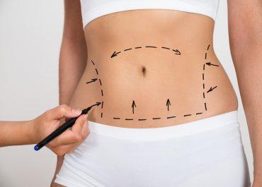 Karın Germe Ameliyatı (Abdominoplasti) Nedir?