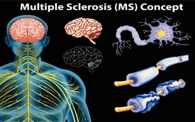 Multiple Sclerosis and Rehabilitation