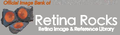Retina Rocks - Retina Image and Reference Library