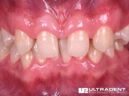 05_Uveneer-Clinical-Before_DrVictorAcosta