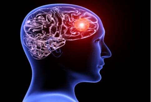 Progressive Neurological Disorders - Buffalo Occupational Therapy (1)