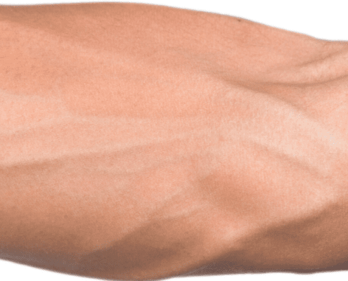 how to anchor the vein