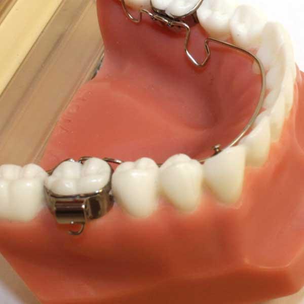 3D®-Lingual-Arch2