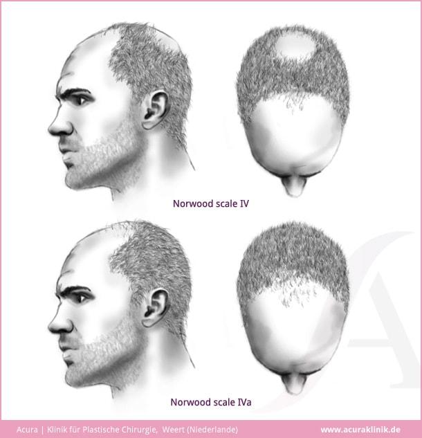 Acuraklinik Weert - Plastische Chirurgie