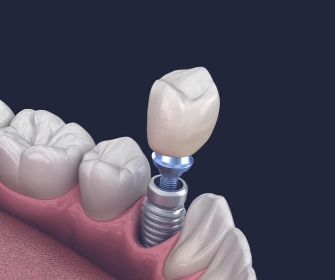 Dentus perfectus - krunica na implantatu
