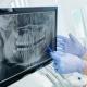 zubni rendgen