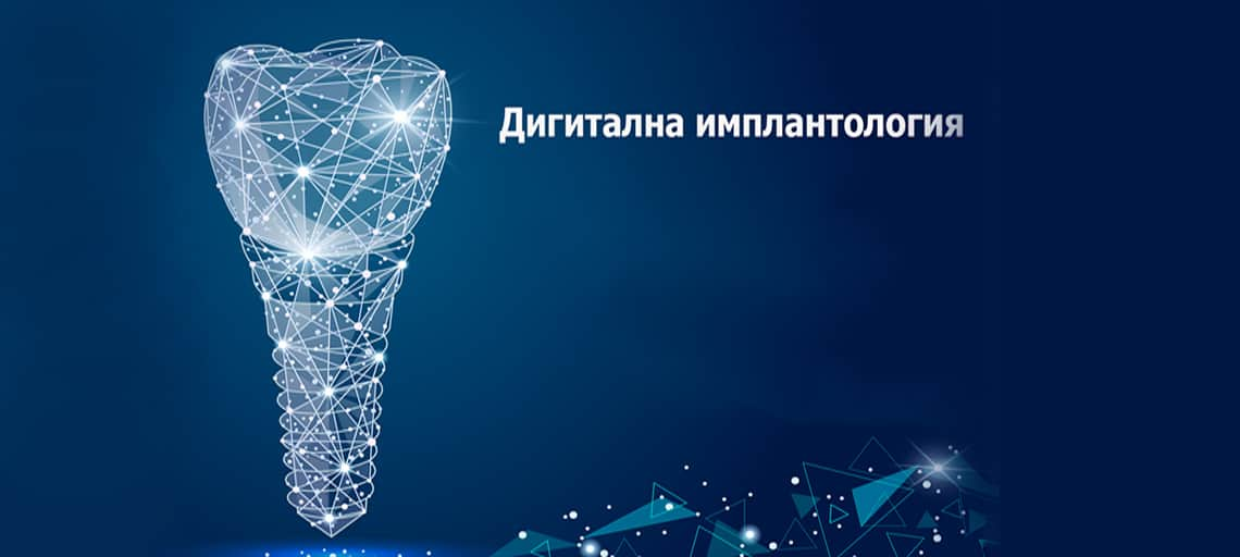Дигитална имплантология