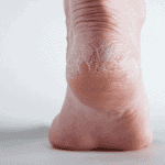 a picture of a foot with peeling heel very dry skin
