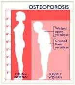 fosteoporosis-jpg