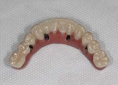 Възстановяване на цяла челюст с импланти All on 4