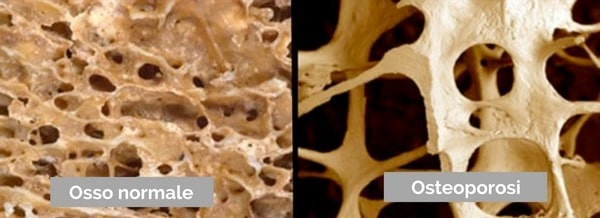 Osteoporosi osso normale osso osteoporotico