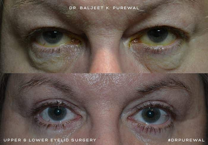 upper and lower blepharoplasty before and after for man with blue eyes