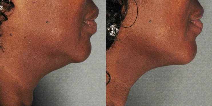 before and after of ultherapy skin tightening on a woman's neck