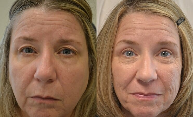 bilateral upper blepharoplasty before and after results of a woman aged 50 to 55