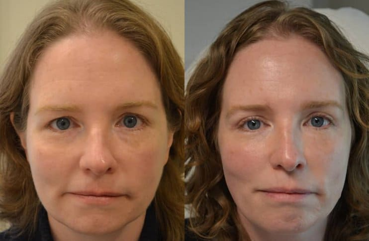bilateral upper blepharoplasty before and after results of a woman aged 40 to 45