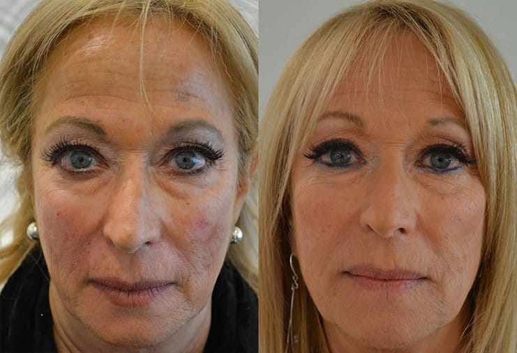 dermal filler before and after for woman's face