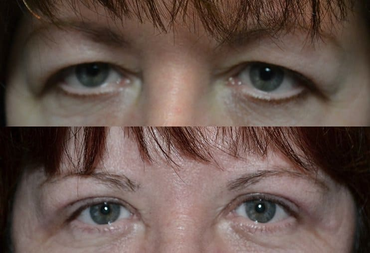 bilateral upper eyelid surgery before and after photo of a woman aged 30 to 35