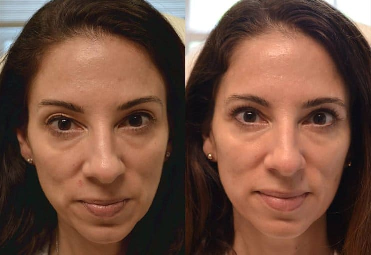 woman's upper blepharoplasty before and after results