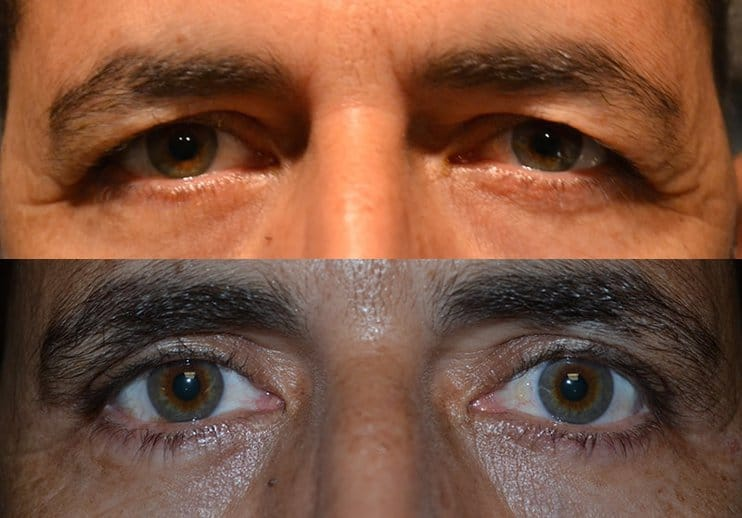bilateral upper blepharoplasty before and after results of a man aged 50 to 55