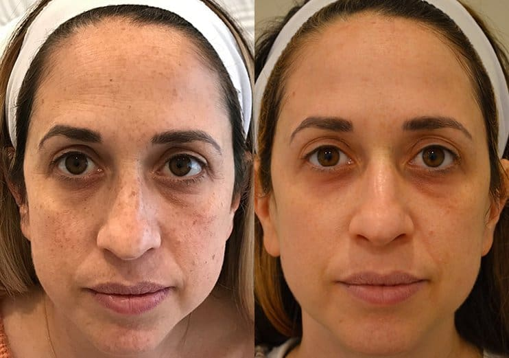 bbl photofacial and botox before and after for woman's face, removing dark spots and tightening skin