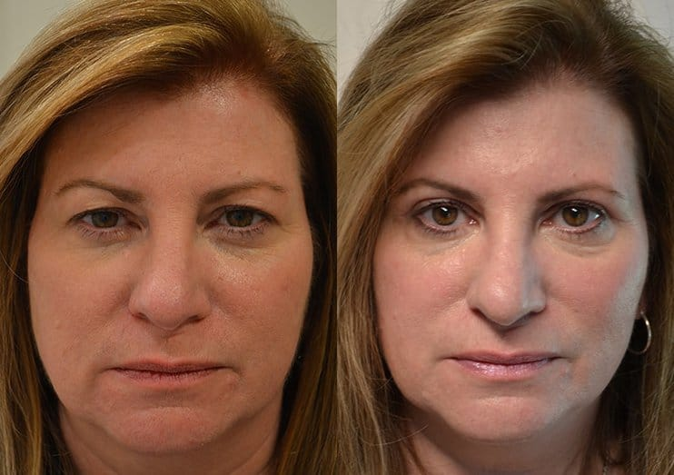 bilateral upper blepharoplasty before and after results of a woman aged 55 to 60