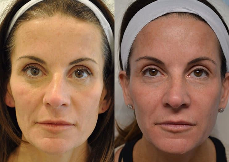 dermal filler before and after of woman aged 45 to 50 with concerns about cheeks and temples