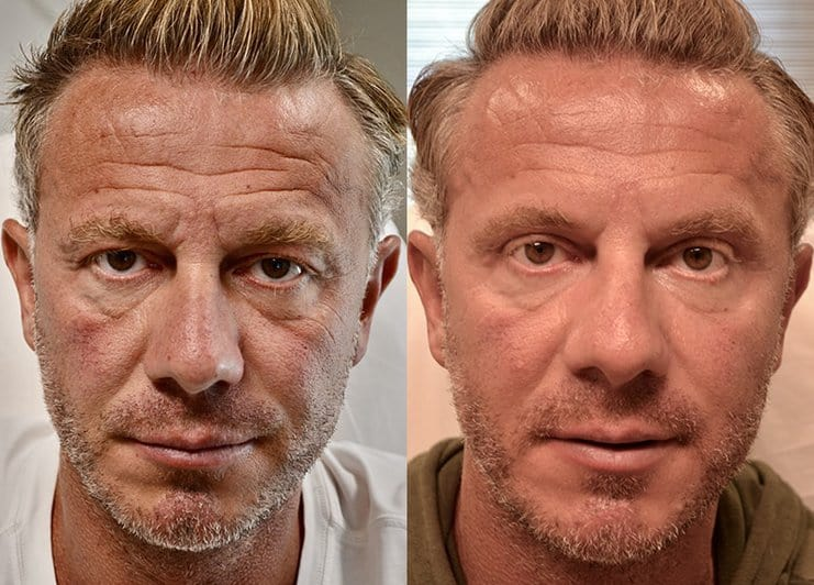 bilateral upper blepharoplasty before and after results of a man aged 45 to 50