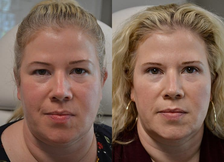 upper eyelid surgery before and after results of a woman aged 45 to 50