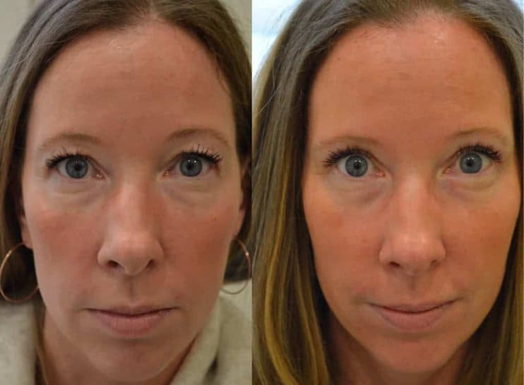 bilateral upper eyelid surgery before and after photo of a woman aged 40 to 45