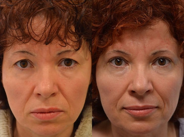 upper eyelid surgery before and after results of a woman aged 50 to 55