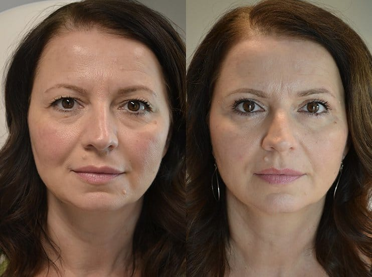 bilateral upper blepharoplasty before and after results of a woman aged 50 to 55, fixing loose eyelids