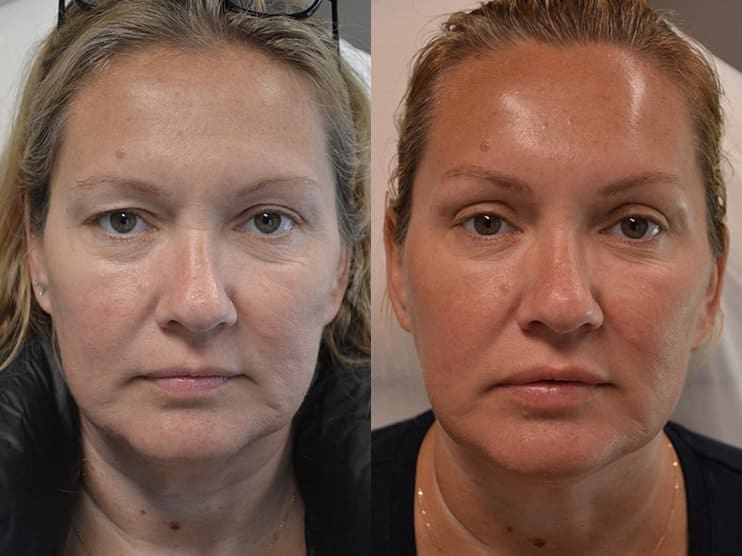 bilateral upper blepharoplasty before and after results of a woman aged 45 to 50