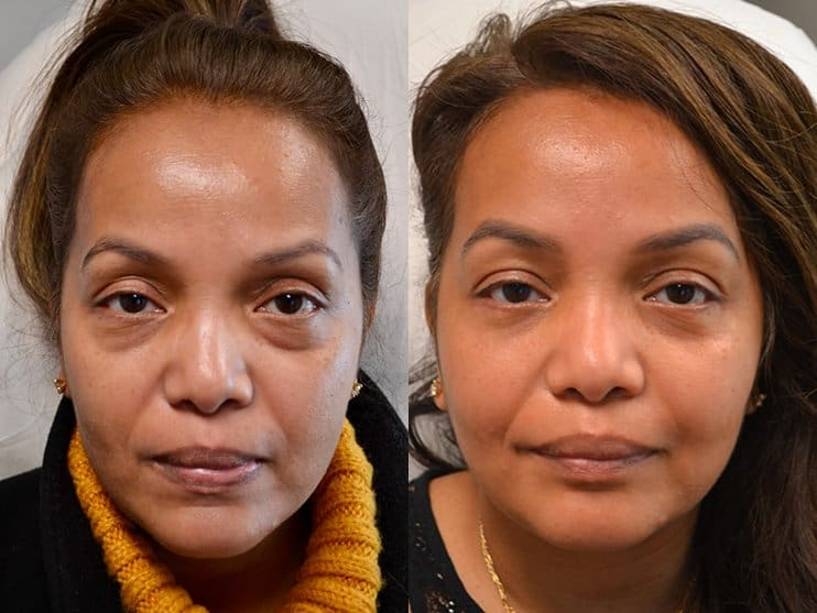 lower eyelid surgery before and after of woman aged 40 to 45 years, fixing dark circles under eyes