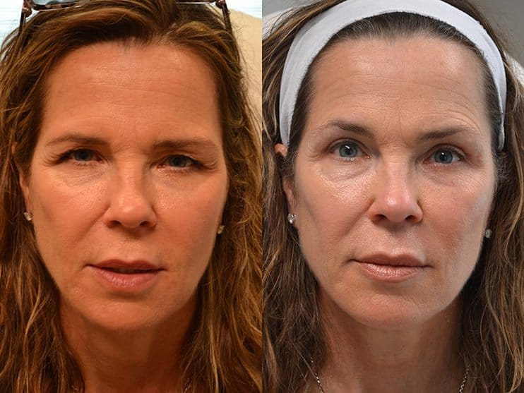 upper eyelid surgery before and after results of a woman aged 55 to 60