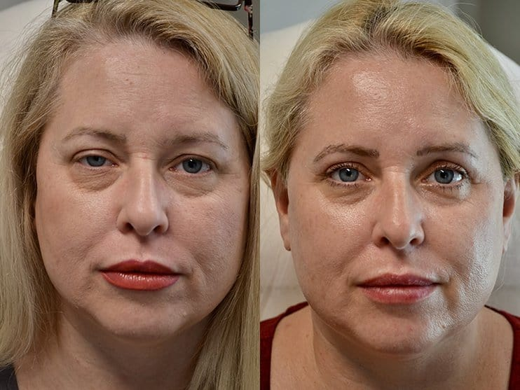 blepharoplasty and ptosis surgery before and after of woman aged 45 to 50