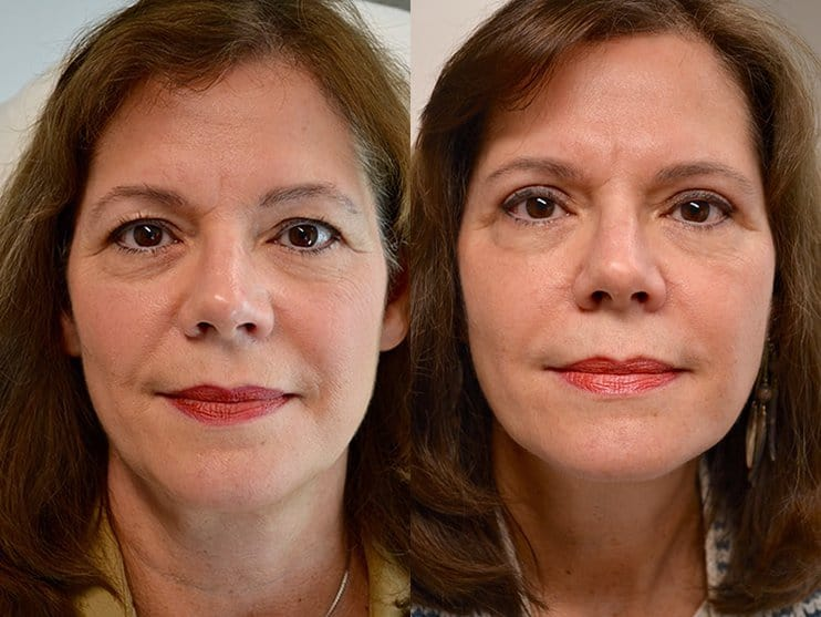 bilateral upper blepharoplasty before and after results of a woman aged 60 to 65