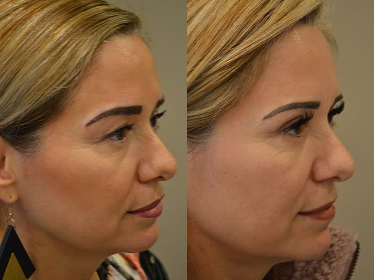 bilateral upper blepharoplasty before and after results of a woman aged 50 to 55, from the right side