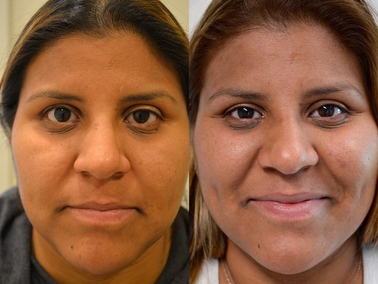 ptosis surgery before and after of woman aged 30 to 35