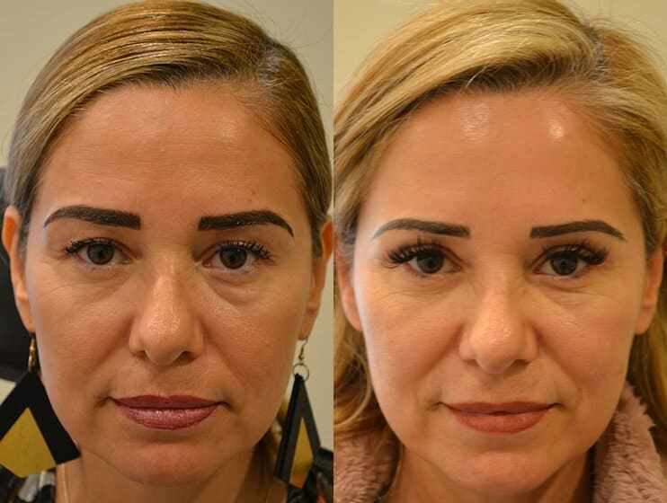 bilateral upper blepharoplasty before and after results of a woman aged 50 to 55, reducing extra skin on eyelids