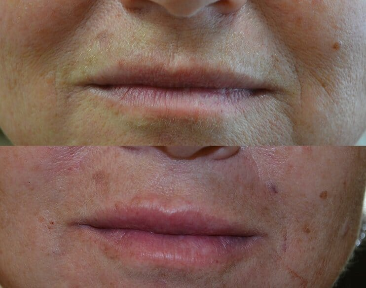 dermal filler before and after to remove fine lines around mouth
