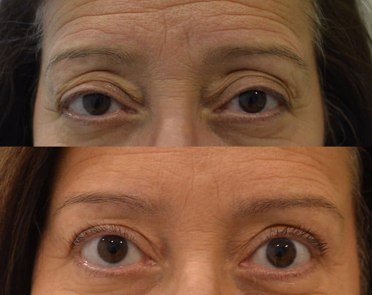 bilateral upper eyelid surgery before and after photo of a woman aged 45 to 50