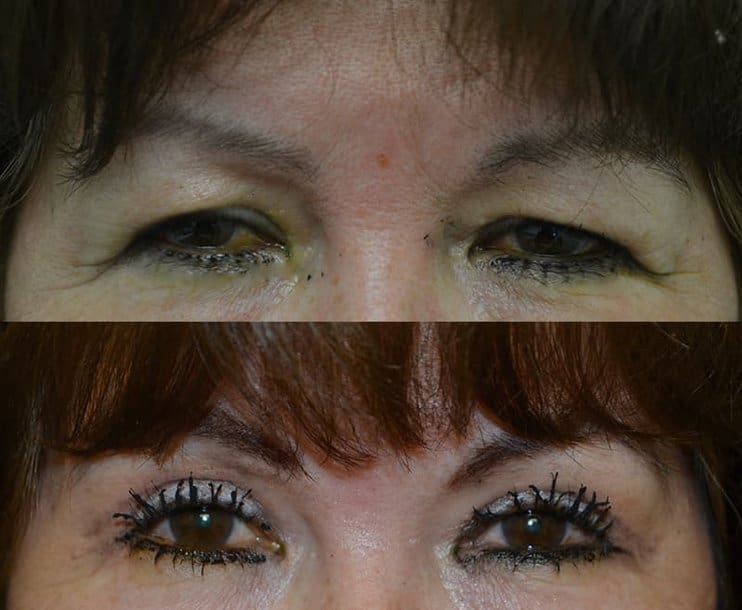 bilateral upper blepharoplasty before and after results of a woman aged 50 to 55, fixing droopy brow