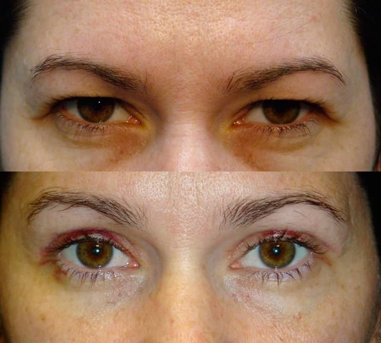 bilateral upper blepharoplasty before and after results of a woman aged 30 to 35