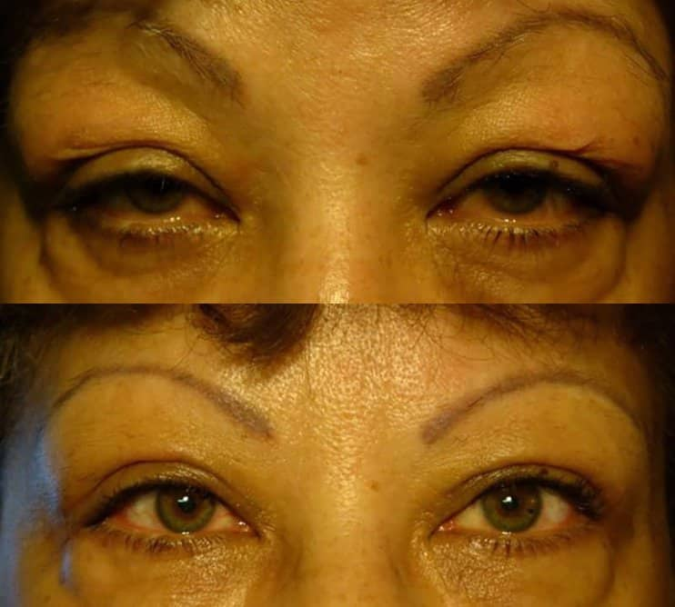 ptosis surgery before and after results for a woman aged 50 to 55