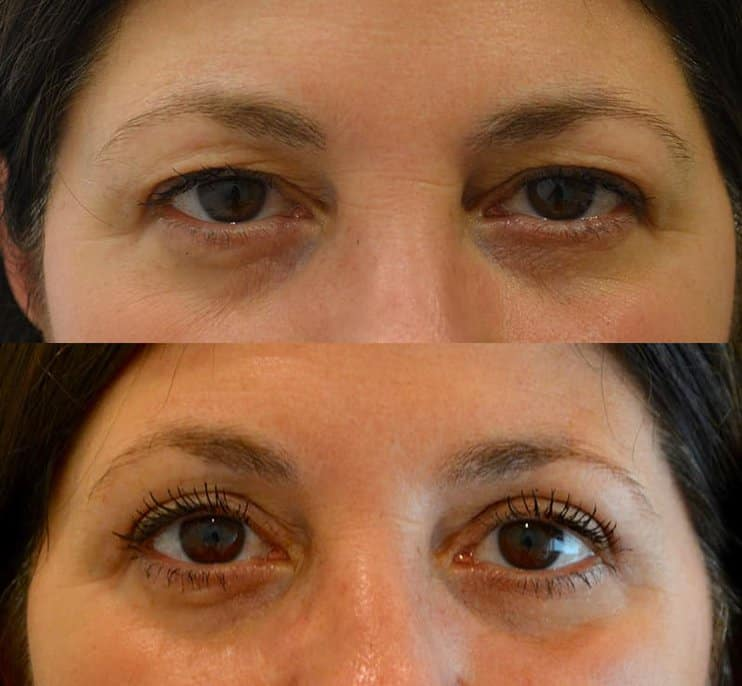 bilateral upper blepharoplasty before and after results of a woman aged 50 to 55, fixing heavy and hooded eyelids