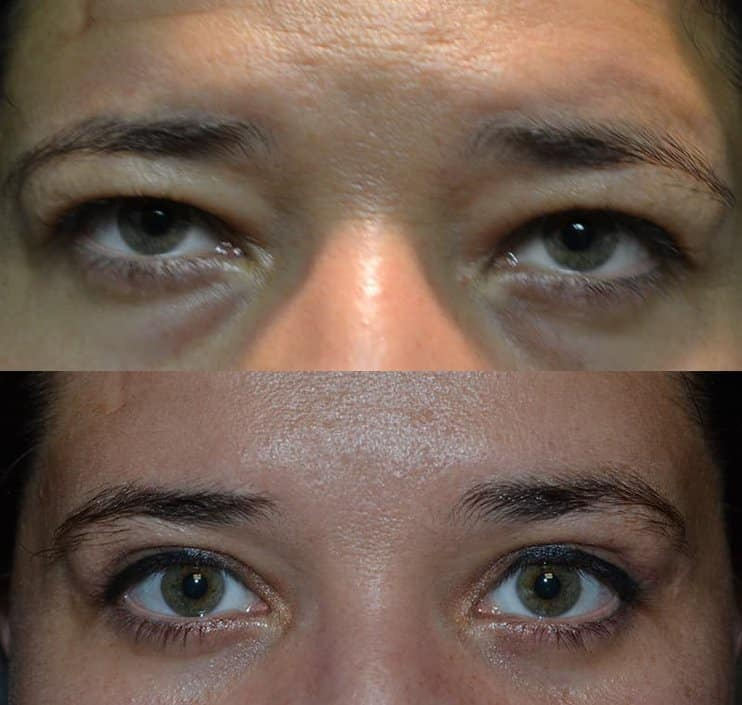person with hazel eyes before and after for upper and lower blepharoplasty