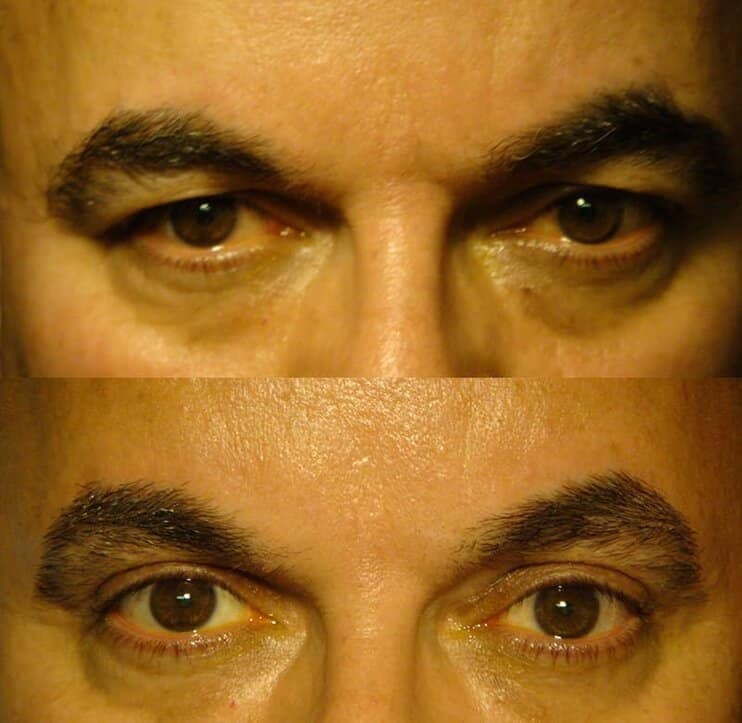 upper eyelid surgery before and after results of a man aged 50 to 55