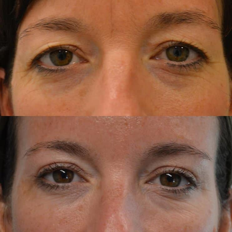 bilateral upper blepharoplasty before and after results of a woman aged 45 to 50, fixing heavy eyelids